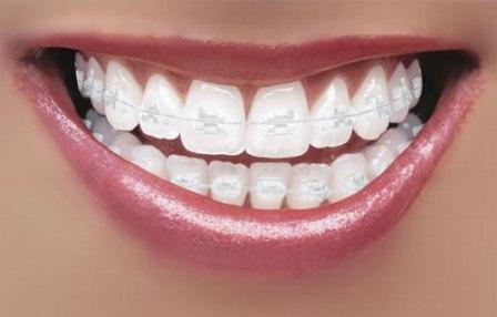 aparat-dentar-ceramic-premiumdent-bucuresti