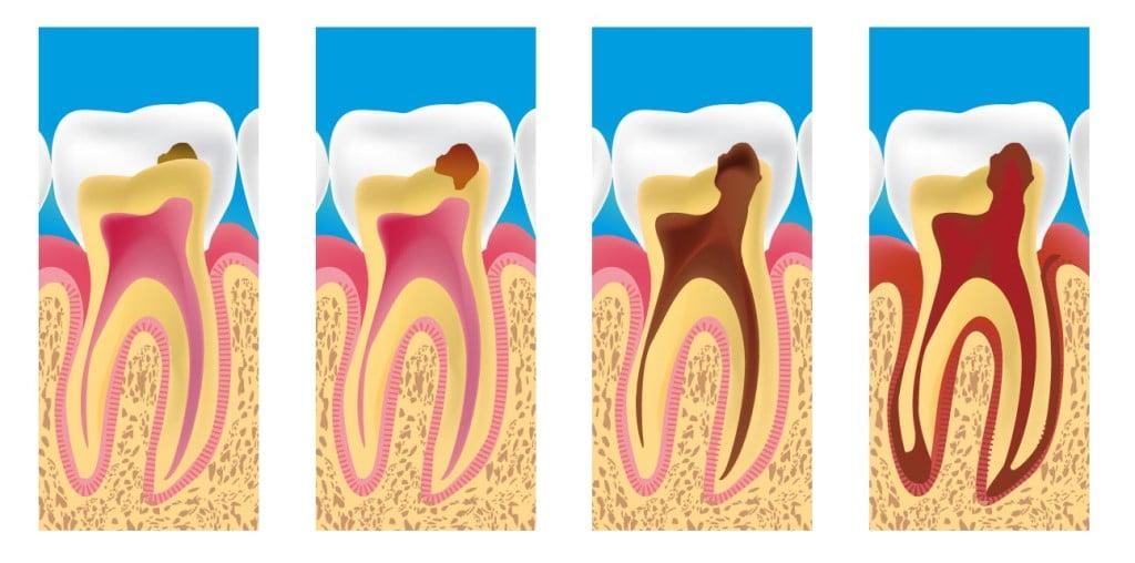 impant dentar
