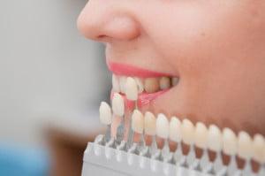 fatete dentare premiumdent