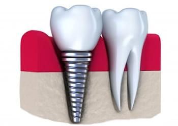 implant-dentar-stomatologie-dentara