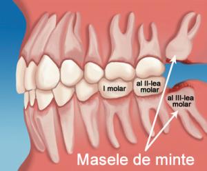 masele de minte al treilea molar clinica stomatologica premiumdent