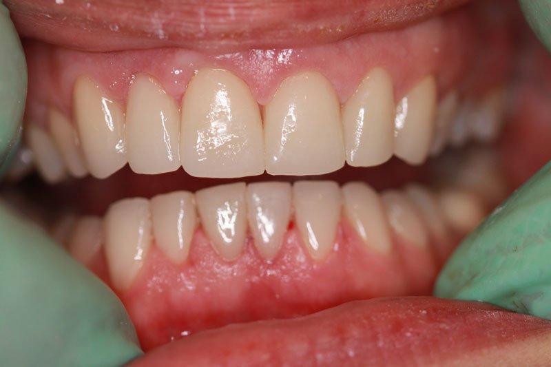 paradentoza boala parodontala unui implant dentar gingivita implant dentar am boala parodontala? Sangerare gingivala respiratie urat mirositoare Parodontita marginala superficial se manifeste prin amplificare semnelor de gingivita la care se implant dentar adauga o implant dentar la care se implant dentar