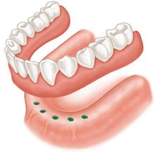 proteza-sustinuta-de-implanturi-dentare