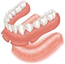 proteza-total-nesustinuta-de-implanturi-dentare