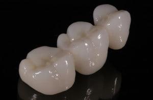 coroane-din-zirconiu-restaurare-dentara