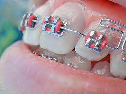 sfaturi pentru pacintii care folosesc aparat dentar fix, metalic, medic specialist stomatolog tratament dentar ceramic reguli de intretinere si sfaturi pentru cabinet stomatologic premiumdent